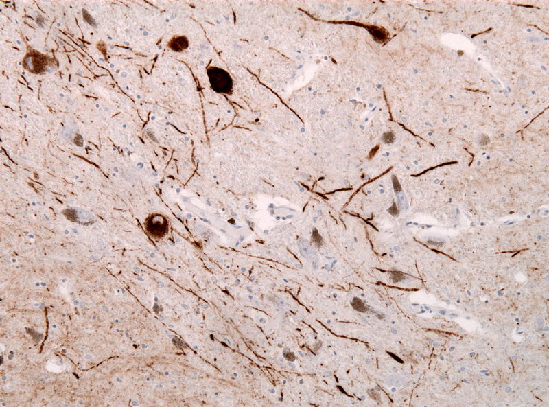 Immunohistochemical staining of Lewy Neurites in a case of Lewy Body Dementia (DLB)